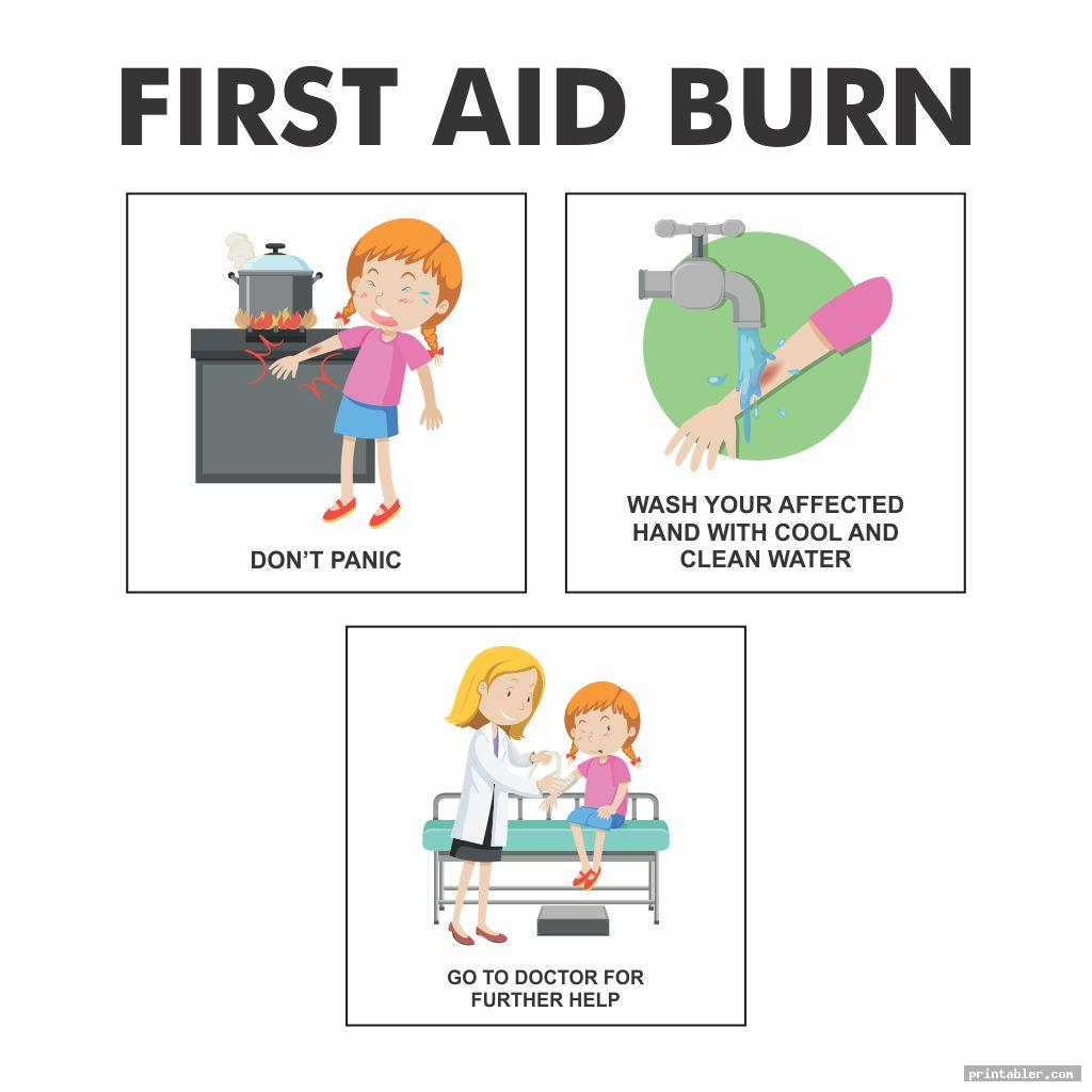 printable first aid activities for burn